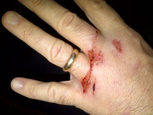 Lathe Hand Injury